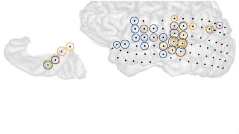 This is a 3-D image of the left brain hemisphere of a patient with tinnitus (right) and the part of that hemisphere containing primary auditory cortex (left). Black dots indicate all the sites recorded from. Colored circles indicate electrodes at which the strength of ongoing brain activity correlated with the current strength of tinnitus perceived by the patient. Different colors indicate different frequencies of brain activity (blue = low, magenta = middle, orange = high) whose strength changed alongside tinnitus. Green squares indicate sites where the interaction between these different frequencies changed alongside changes in tinnitus. (Image: Sedley, W et al.)